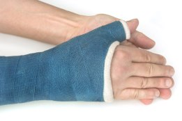 My broken wrist in a blue fiberglass cast